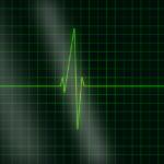 Tout ce que vous devrez connaitre sur un arrêt cardiaque